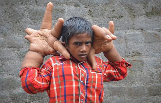 Mundo menino de 8 anos tem mos gigantes que pesam 13 quilos e fotos reproduo daily mail um menino indiano de altavistaventures Images