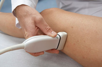 06315d8c2 Rede HISO  especialista em cirurgia vascular dá dicas de como tratar ...